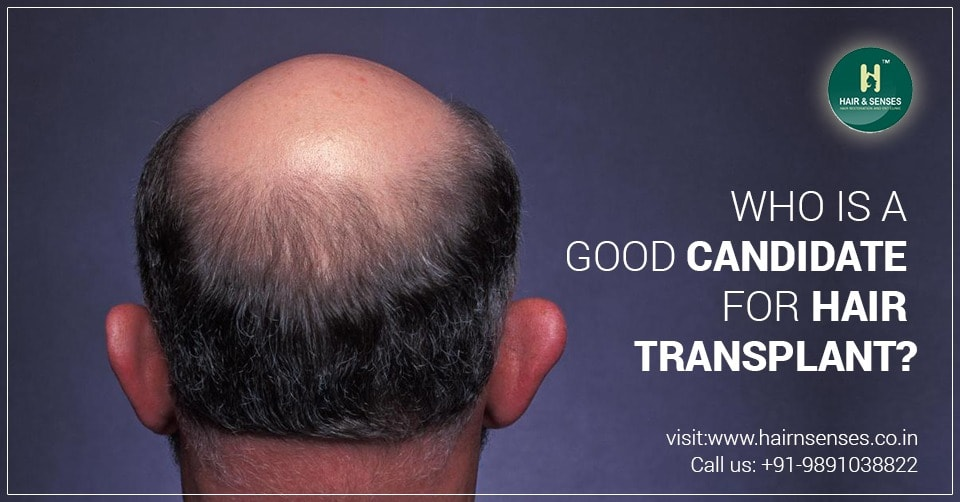 Candidate for Hair Transplant