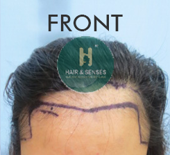 female hair transplant